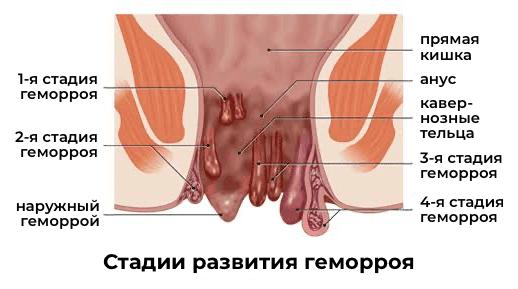 геморрой стадии лечение